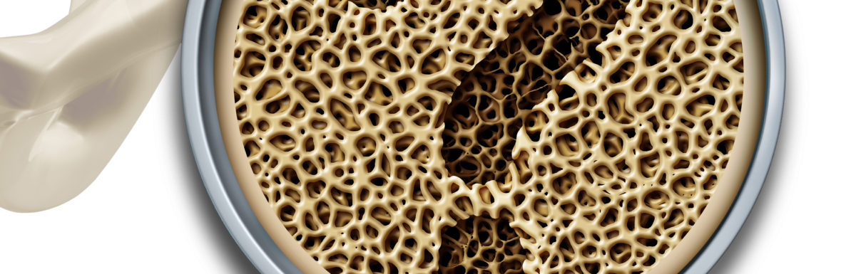 The best way to improve your bone density